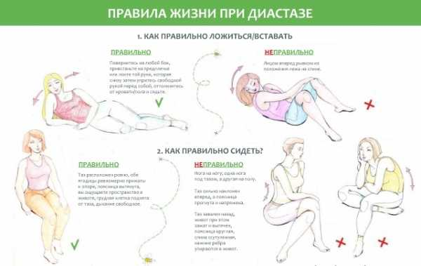 Упражнения при диастазе прямых мышц живота после родов, можно ли качать пресс, крутить обруч и делать другую гимнастику