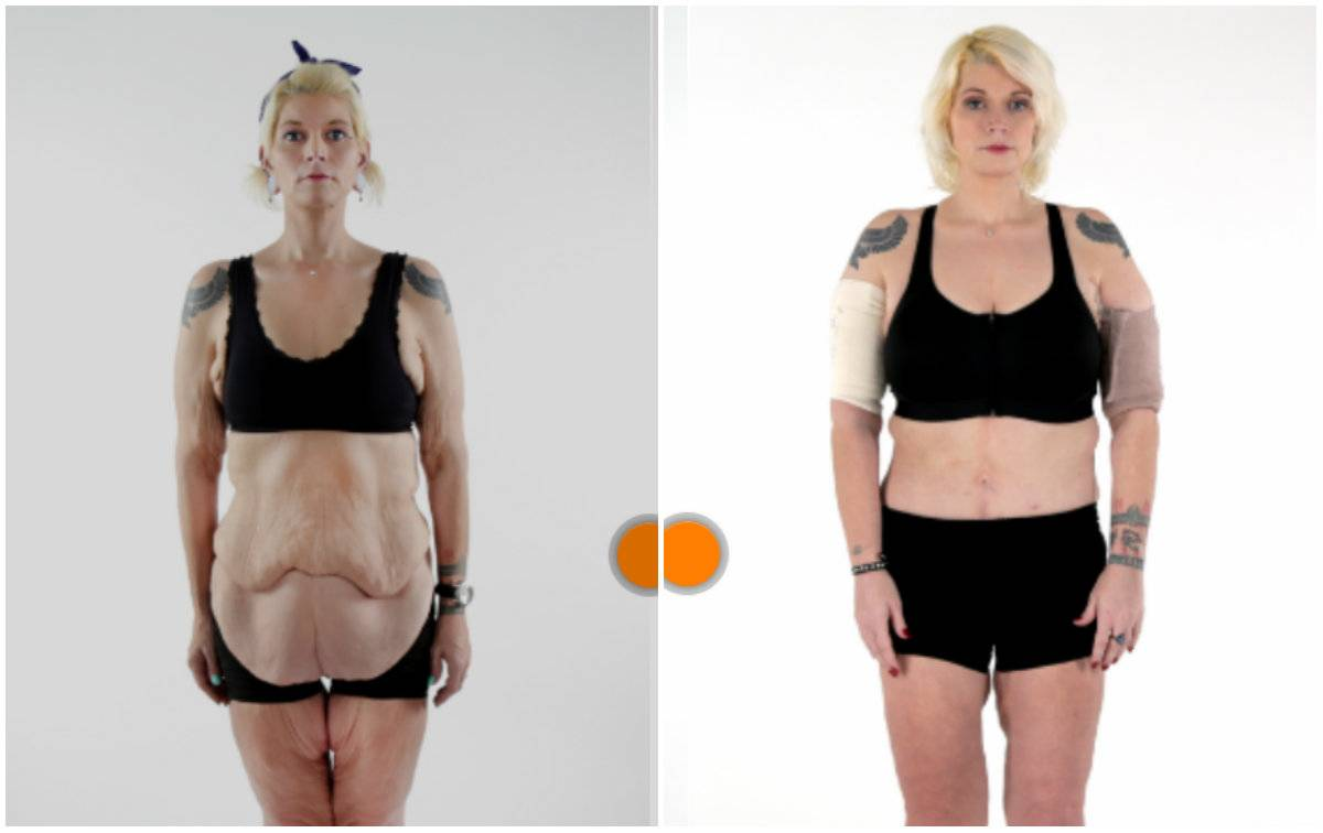 Способы, чтобы подтянуть кожу после похудения в домашних условиях