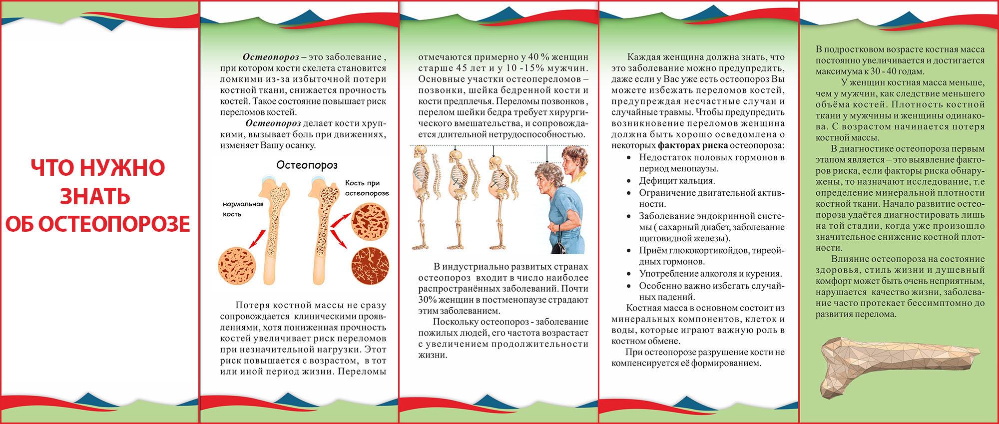 Остеопороз у пожилых людей: симптомы и лечение у женщин и мужчин в пожилом возрасте