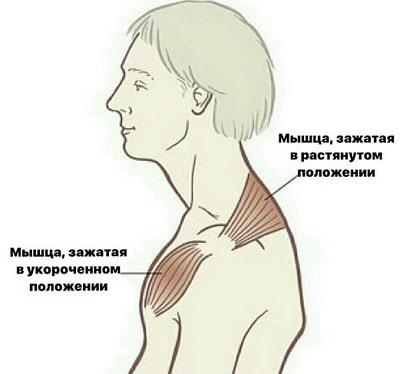 9 типов мышечных зажимов, напрямую связанных с нашими эмоциями :: инфониак