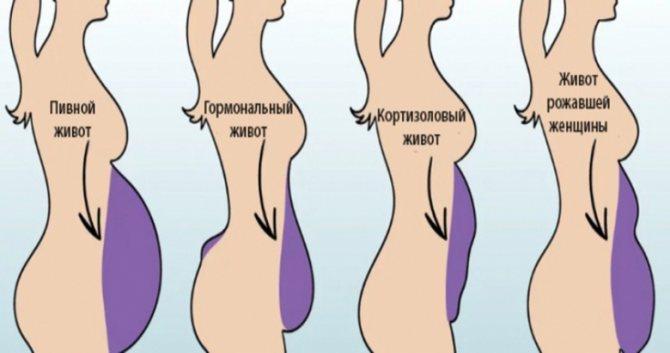 Увеличился живот ниже пупка у женщины причины, выросло пузо