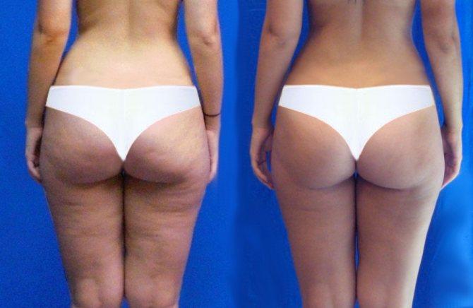 Уходит ли целлюлит при похудении