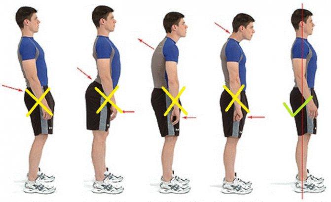 Топ-30 упражнений для улучшения осанки и выпрямления спины