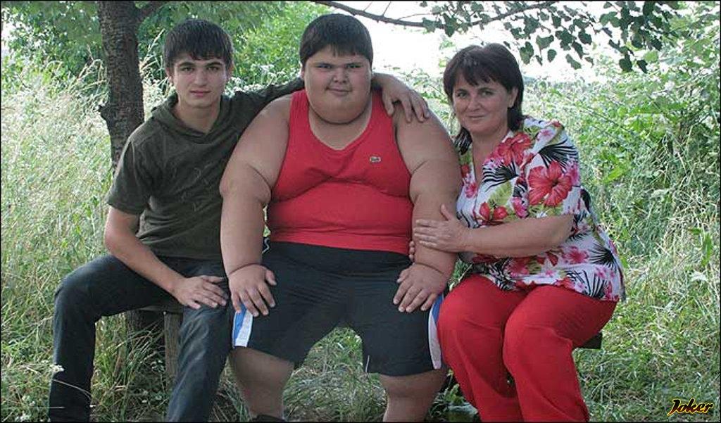 Удивительное до и после — что стало с самым толстым ребенком в мире: мы не поверили своим глазам!