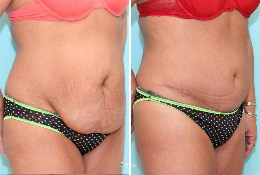 Как после похудения подтянуть кожу на животе всего за 7 дней