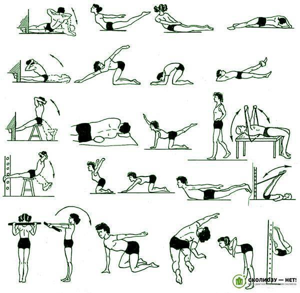 Как лечить искривление позвоночника поясничного отдела упражнениями: 10 лучших упражнений при искривлении позвоночника