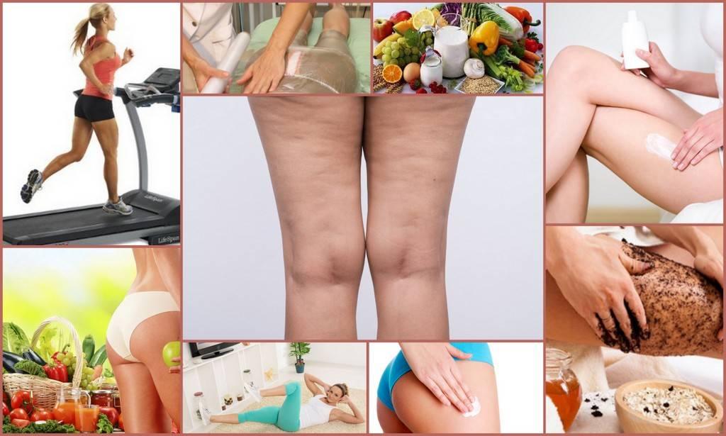 Эффективные упражнения от целлюлита на ягодицах, бедрах в домашних условиях