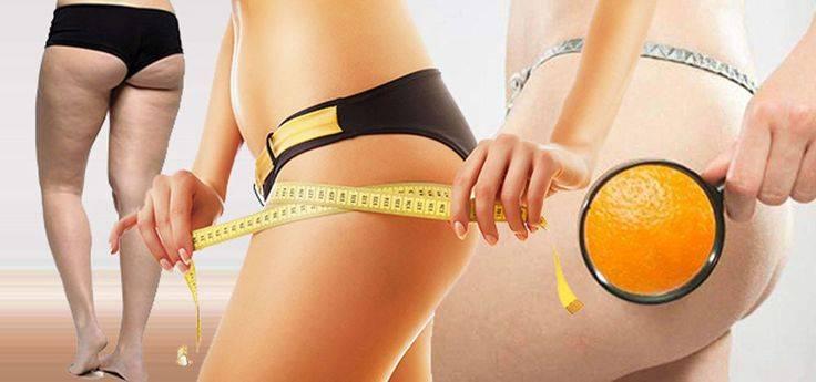 Уходит ли целлюлит при похудении? - давайте выясним