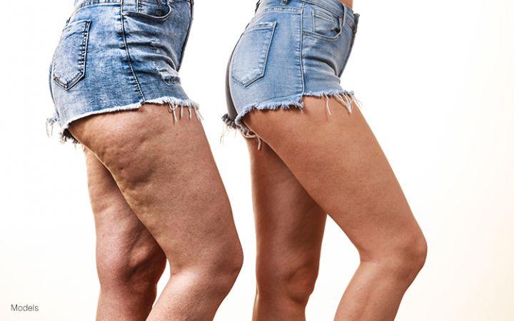 Целлюлит на ногах и попе: как избавиться в домашних условиях