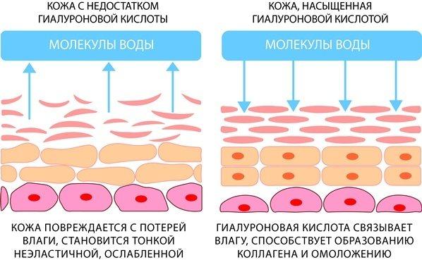 Гиалуроновая кислота для кожи лица: 4 полезных свойства и обзор 5 средств