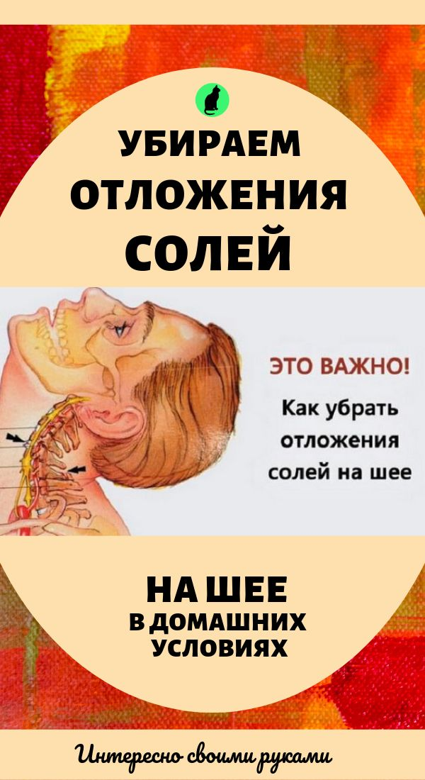 Отложение солей на шее: как убрать, в домашних условиях