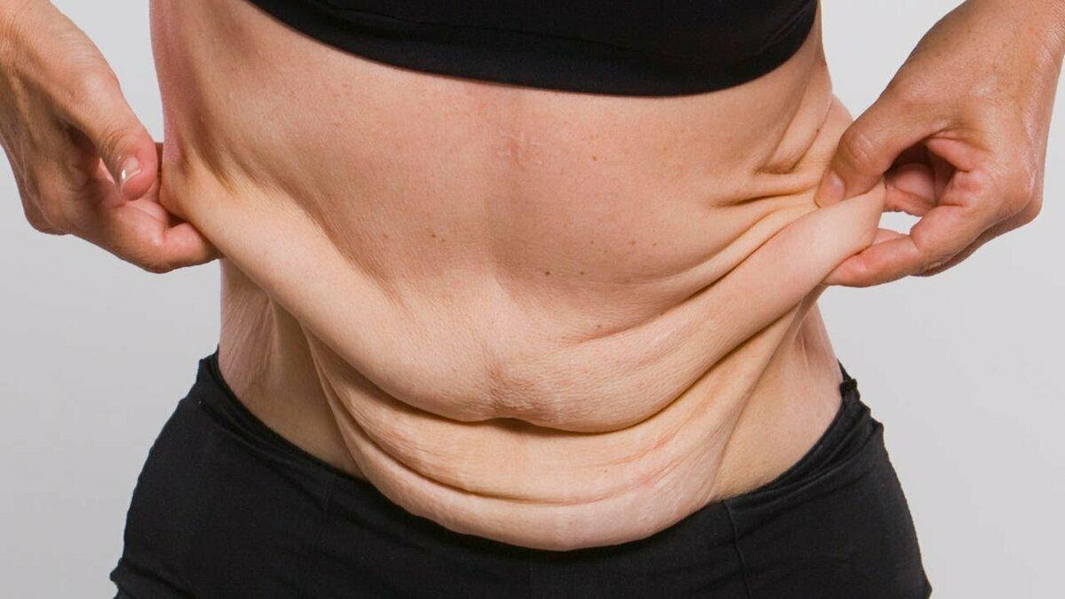 Как подтянуть кожу лица после похудения?