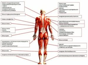 Мышечное напряжение и мышечные зажимы при неврозе