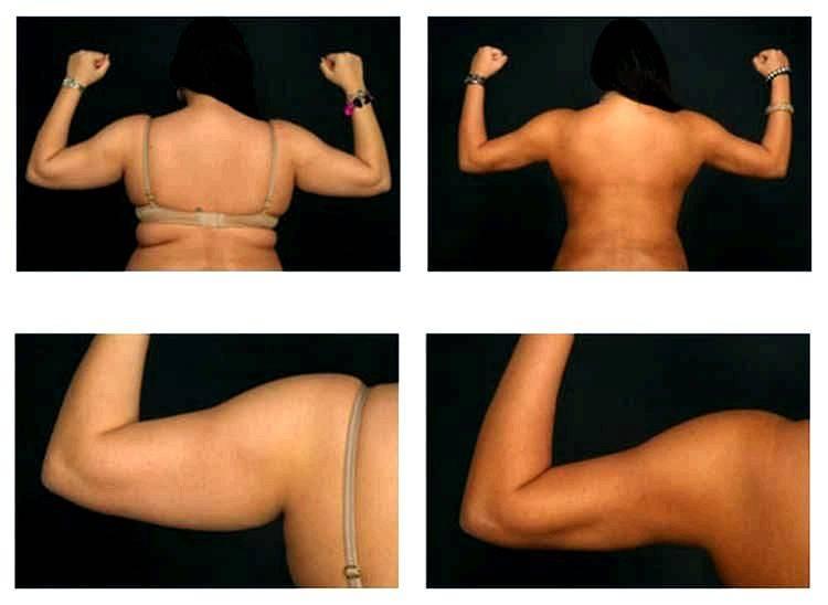 Как убрать жир с рук: упражнения для похудения рук в домашних условиях