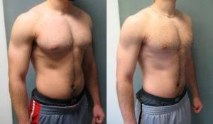 Как убрать жир с грудных мышц мужчине? силовые тренировки и снижение калорийности питания