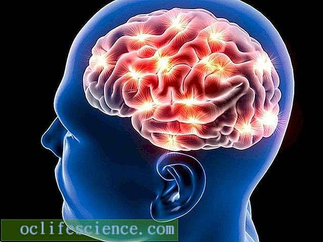 Как стресс меняет работу мозга? - hi-news.ru