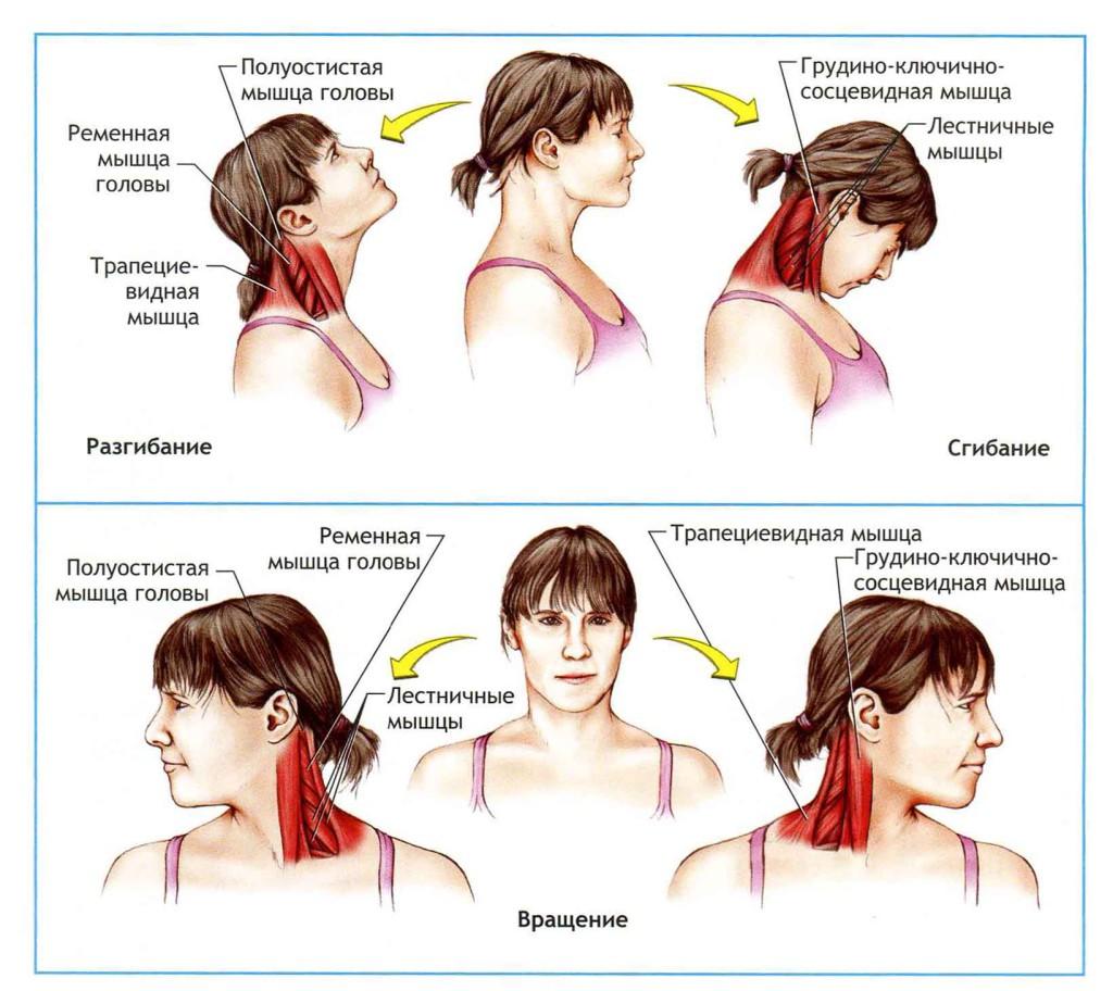 Шейный миозит: симптомы и лечение