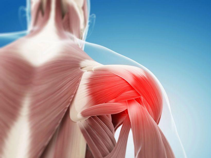 Боли в мышцах по всему телу на нервной почве