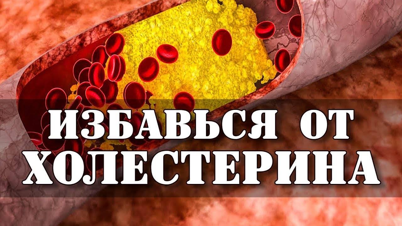 Как быстро снизить холестерин в крови народными средствами
