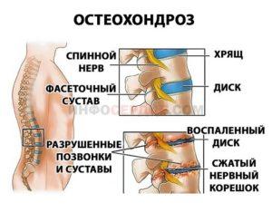 При защемлении нерва в грудном отделе | спина доктор
