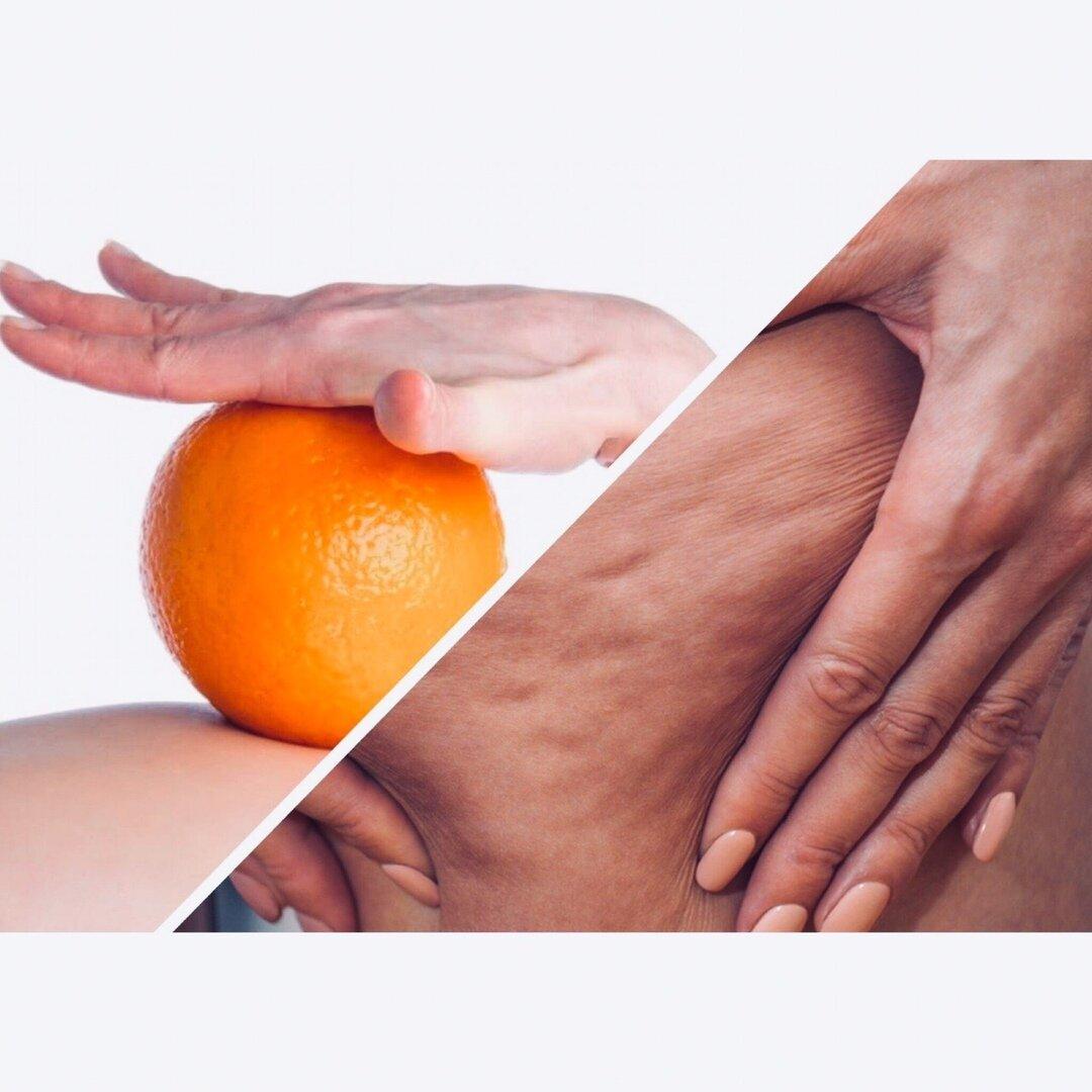 Почему появляется целлюлит на ногах и ягодицах у женщин и мужчин