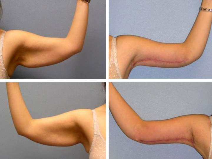 После похудения обвисла кожа — что делать?