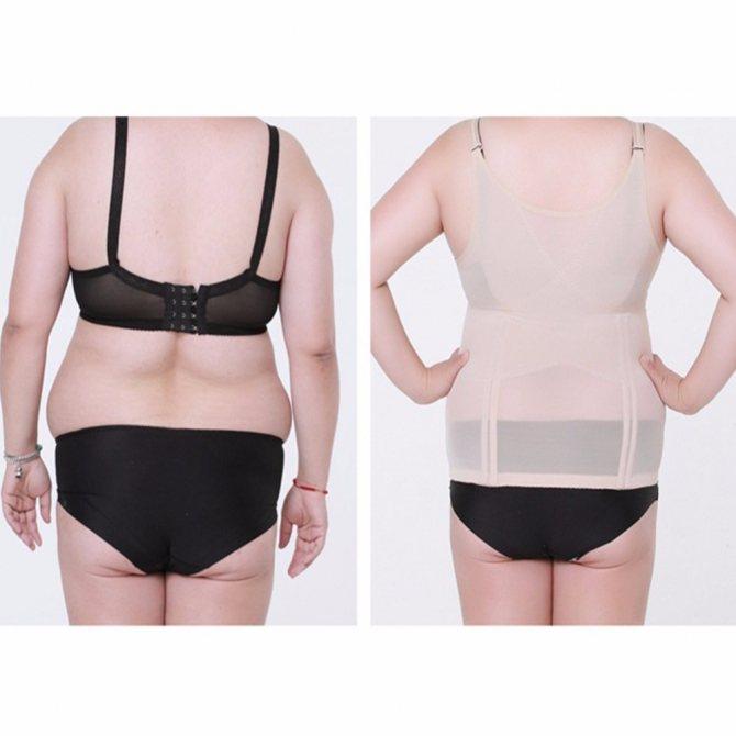 Утягивающий и корректирующий корсет: эффективный способ похудения живота в домашних условиях