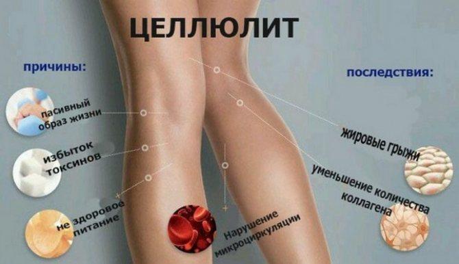 Целлюлит на ногах: как избавиться, фото, упражнения, массаж. целлюлит на ногах и попе