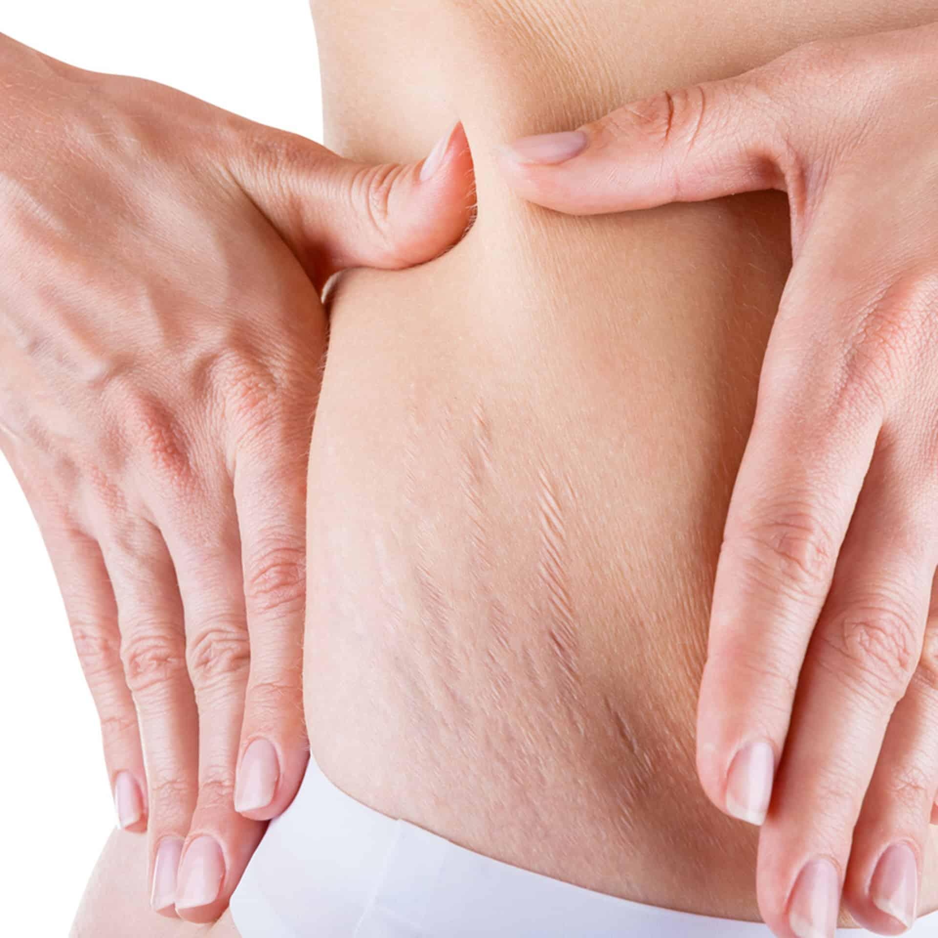 Как избавиться от растяжек после родов и беременности: 5 средств для живота, груди и бедер
