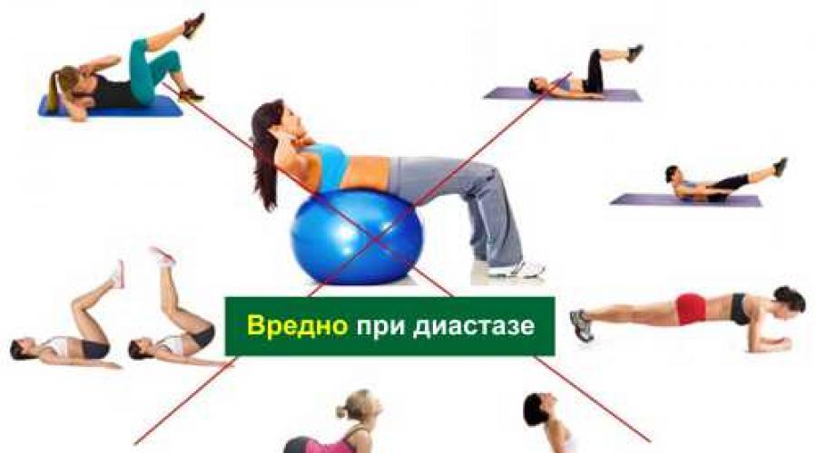 Эффективные упражнения для пресса при диастазе прямых мышц живота с фото