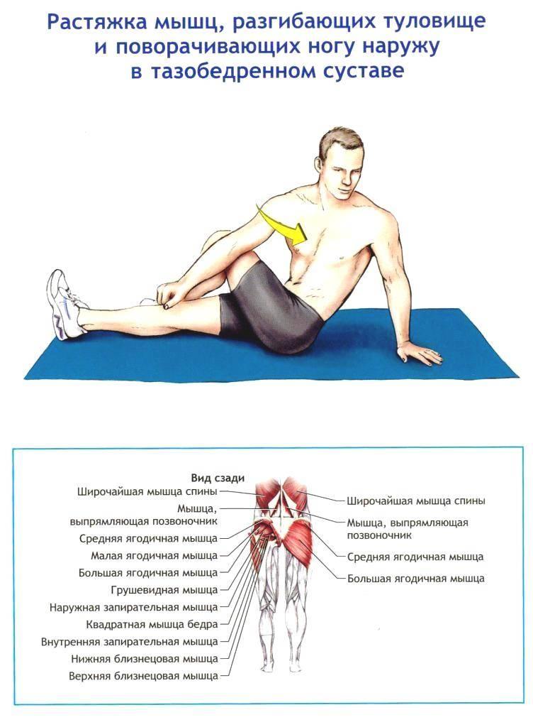 Воспаление подвздошной мышцы: симптомы и лечение