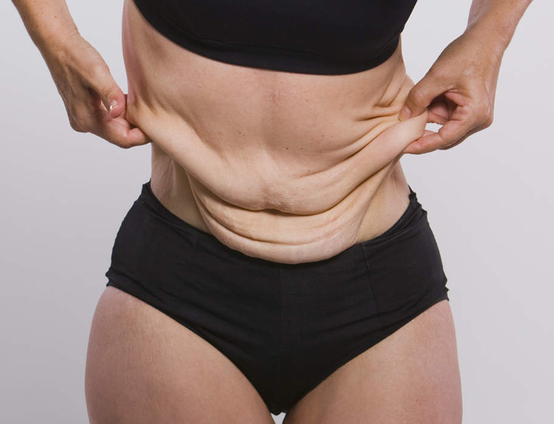 Подтянуть кожу после похудения в домашних условиях - как избавиться от дряблого тела и восстановить тонус