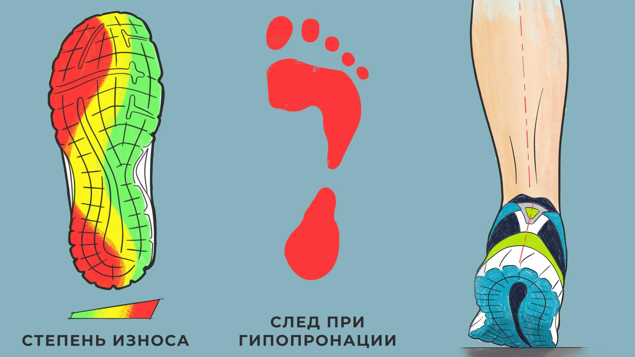 Кроссовки при плоскостопии: особенности, выбор, покупка