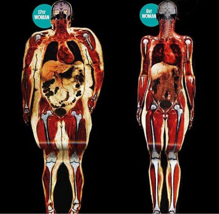 Тяжелая кость : сколько на самом деле весил скелет человека