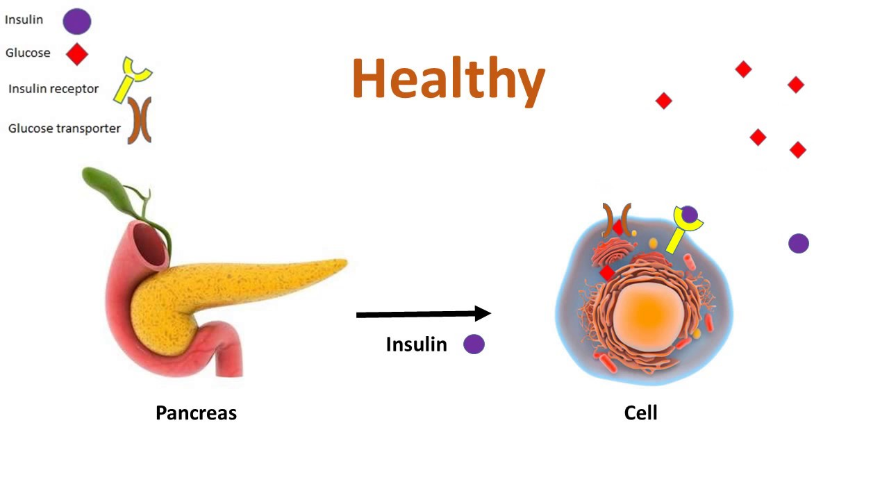 Инсулин: как быстро и эффективно начать похудение.