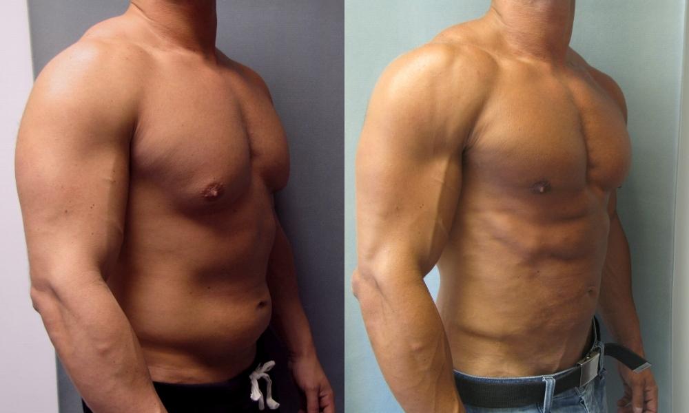 Ложная гинекомастия у мужчин: лечение, операция, фото, лечение без операции