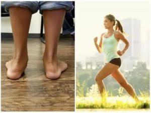 Обувь при плоскостопии – ортопедическая спортивная и повседневная обувь (63 фото моделей)