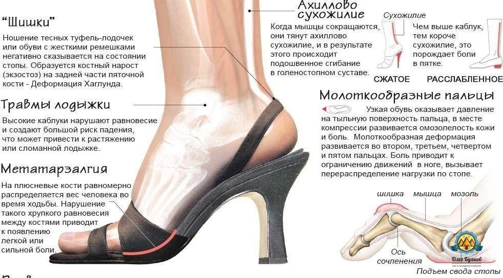 Есть вопрос: как каблуки влияют на здоровье