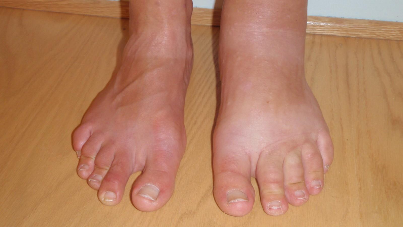 Отечность ног в жару: ищем причины и способы лечения
