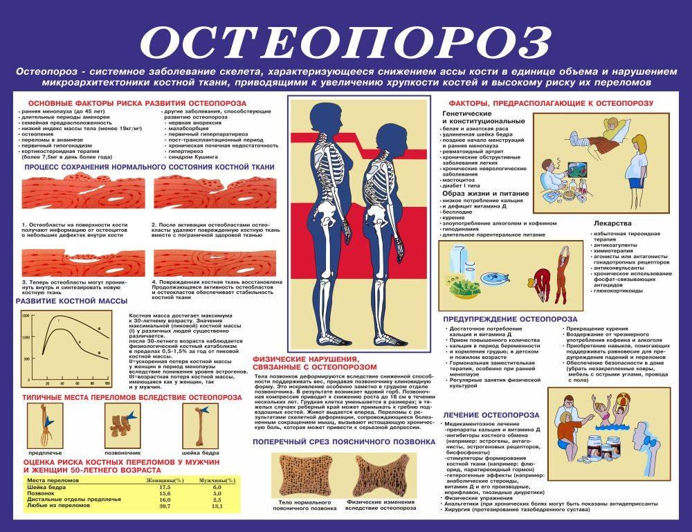 Остеопороз у пожилых женщин и мужчин - первые проявления, методы терапии, упражнения и диета