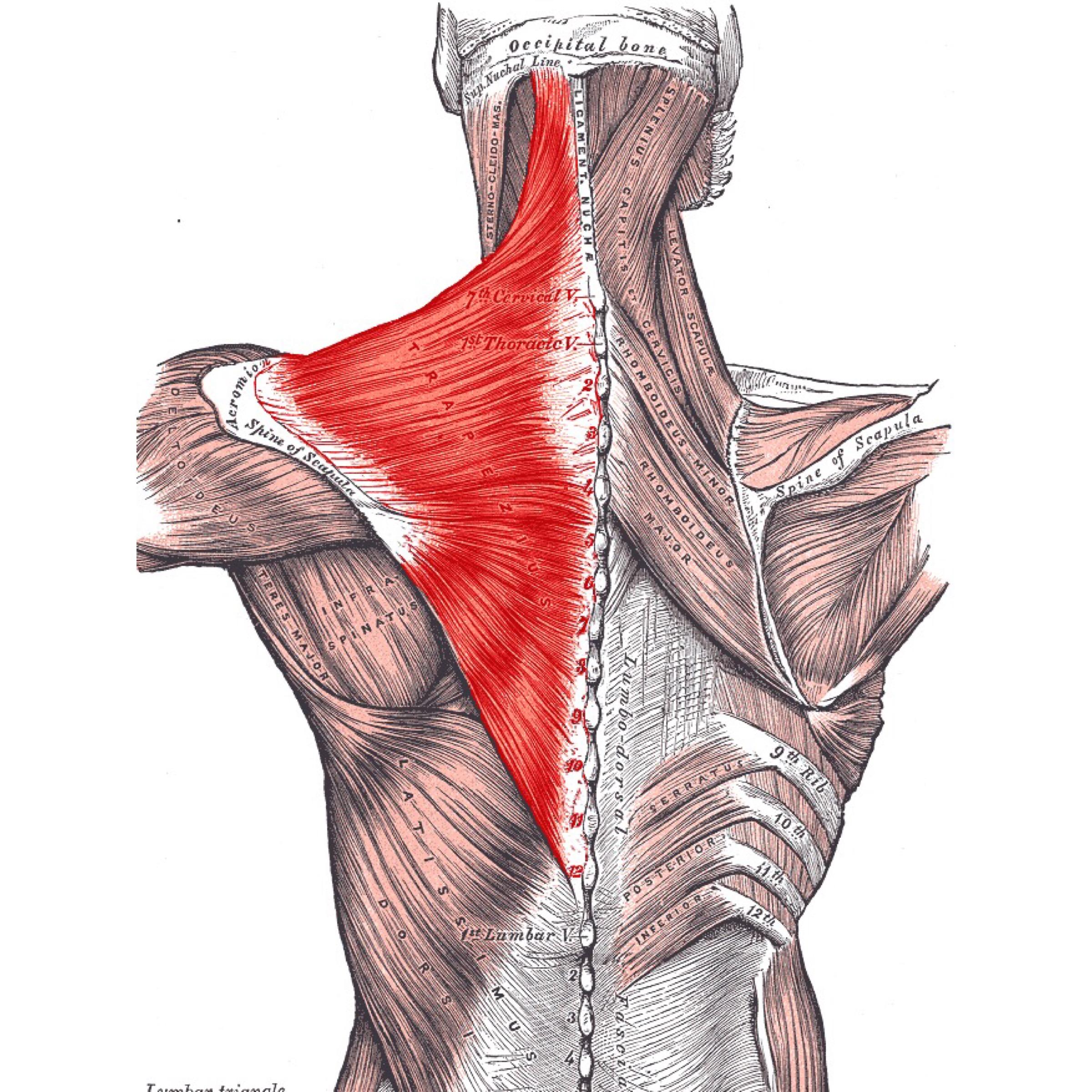 Миалгия трапециевидной мышцы  | kinesiopro