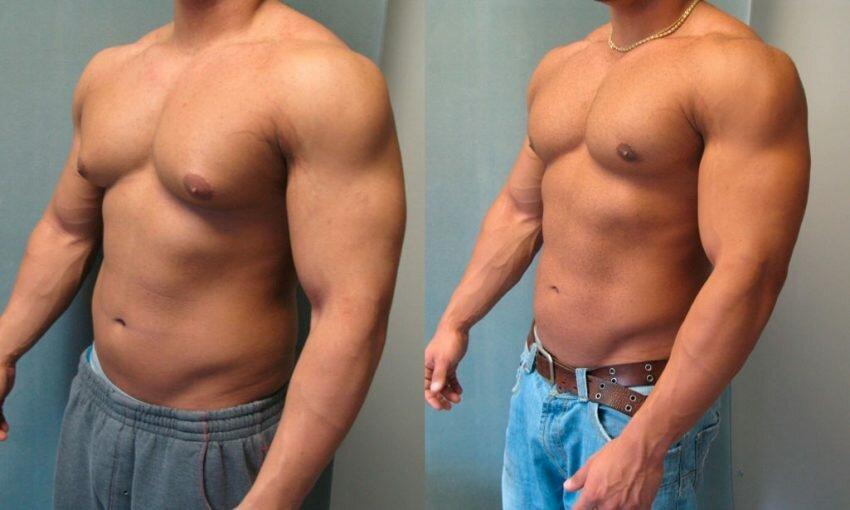 Гинекомастия – увеличение молочных желез у мужчин