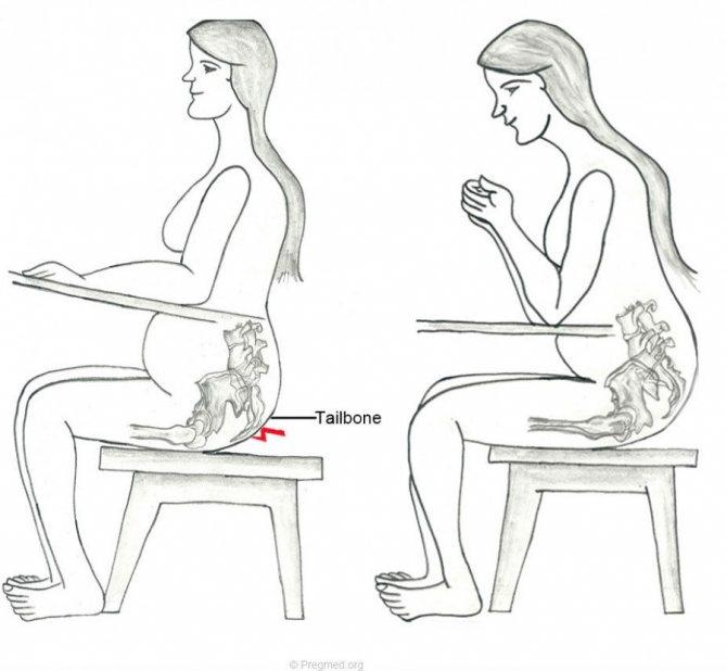 Болят колени при приседании на корточки и вставании: чем лечить боль, причины