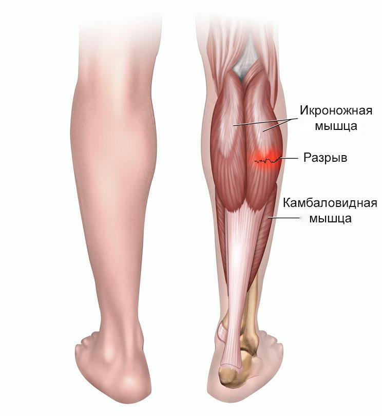 Растяжение сухожилий, связок и мышц