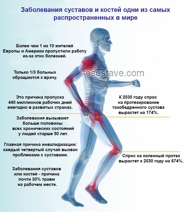 Боли в суставах ног: причины и лечение. почему болят суставы ног?
