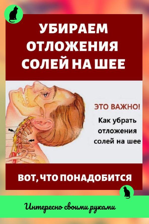 Отложение солей в области шеи: причины появления, как лечить