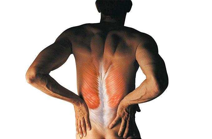 Спазм мышц спины - симптомы, причины и лечение спазмов спины