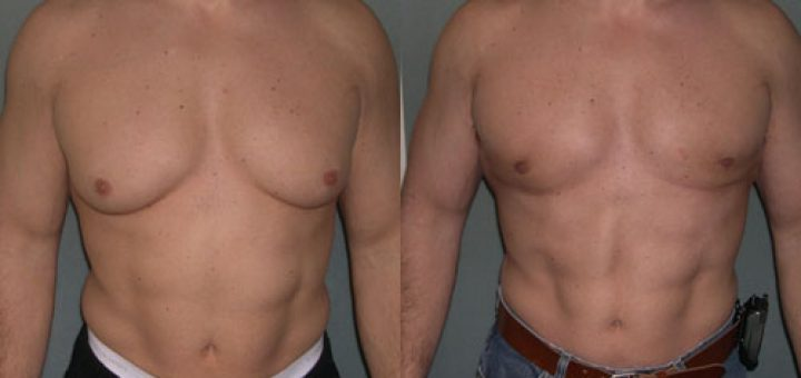 Гинекомастия у мужчин: лечение без операции на курсе стероидов (+10 фото до и после)