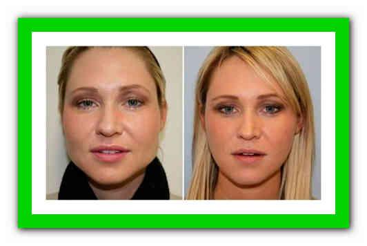 Как похудеть в лице за неделю? полезные советы и рекомендации!