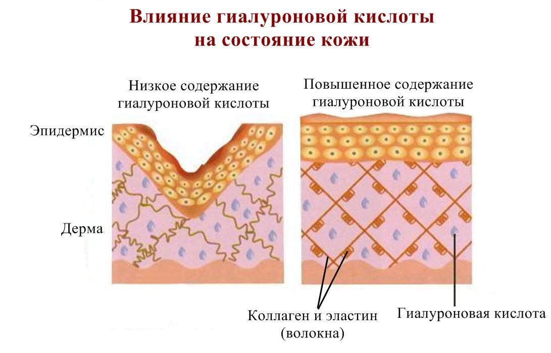 Гиалуроновая кислота для суставов: эффект, как применять, показания